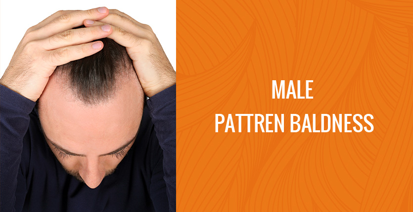 male-pattern-baldness-big